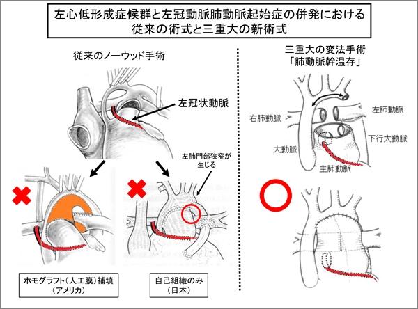 20160204肺動脈幹温存法