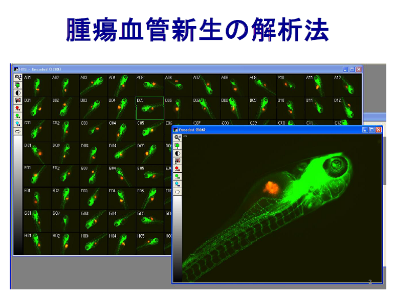 腫瘍血管新生の解析法