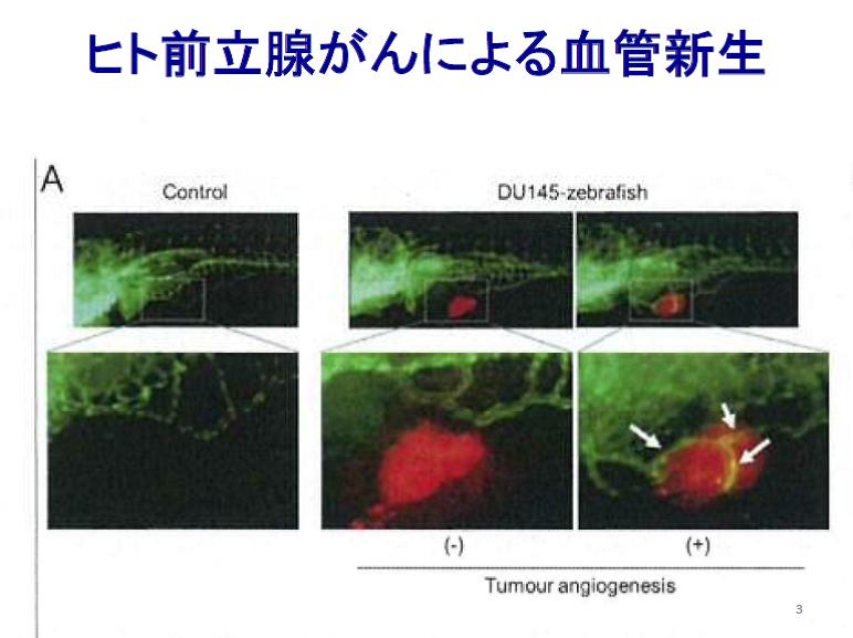 ヒト前立腺がんによる血管新生